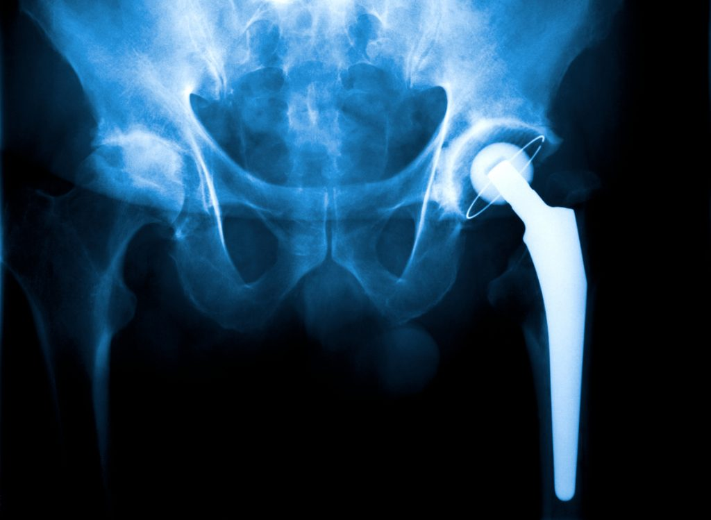An X Ray of a hip joint problem